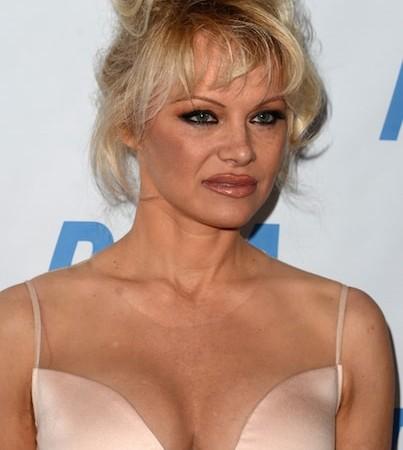 Celebrity Breast Implants