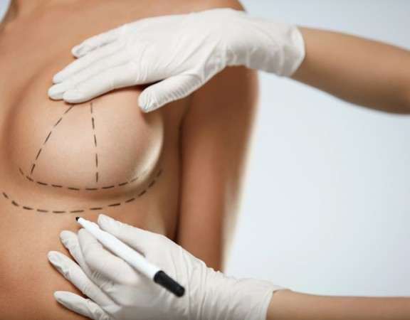 See how natural breast aumgnetation is performed